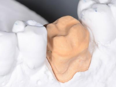 Corona integrale in ceramica feldspatica Yamakin su refrattario